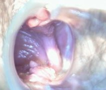 阴道横隔 transverse vaginal septum