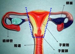 子宫切除 Hysterectomy