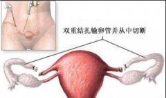 输卵管结扎 Tubal ligation