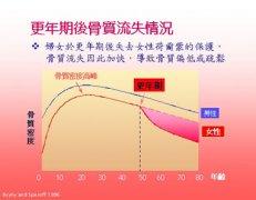 更年期综合症 Climacteric syndrome