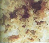 葡萄胎 Hydatidiform mole