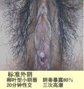 阴蒂暴露术 Clitoris is exposed