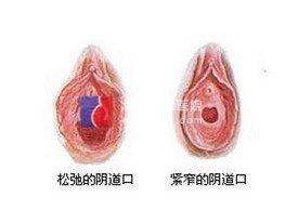 阴道松弛的症状和表现有哪些?