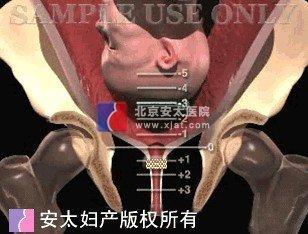 流产之宫颈埋箍术图片