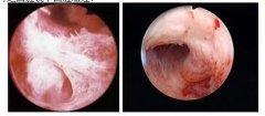习惯性流产宫腔粘连图片Image of uterine adhesion to habitual miscarriage The uterine cavity adhesion